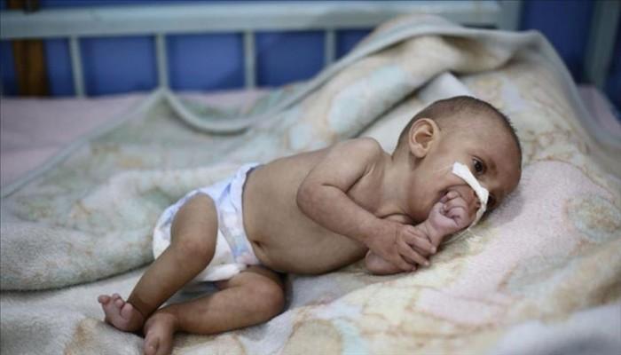 مسؤول إغاثي أممي: اتفاق ستوكهولم لم يطعم طفلا واحدا باليمن