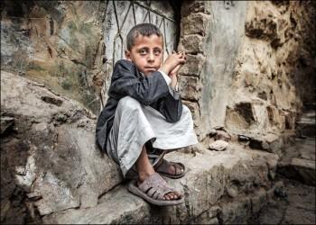 «المخلافي»: ثلاثة أرباع سكان اليمن يفتقرون للمساعدة الإنسانية