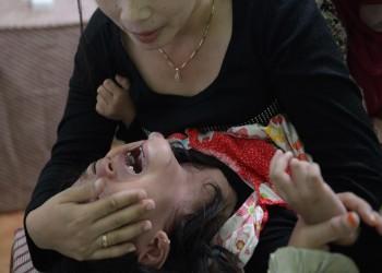 التحقيق في واقعة ختان طفلة مصرية أثارت جدلا