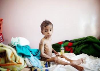 مسؤول أممي محذرا من كارثة باليمن: ليخجل العالم