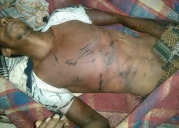 مقتل يمني جراء التعذيب بسجن تديره قوات مدعومة إماراتيا