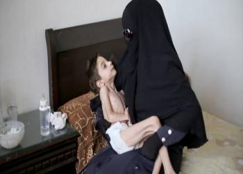شاهد.. «رهف» طفلة الغوطة.. هل تنقذها يد قبيل الموت؟