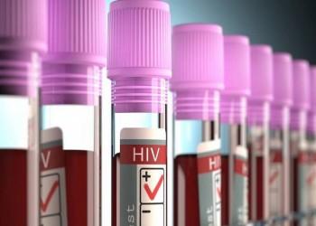 أطباء يتهمون مستشفى مصريا بتعريضهم للخطر بسبب مريض إيدز