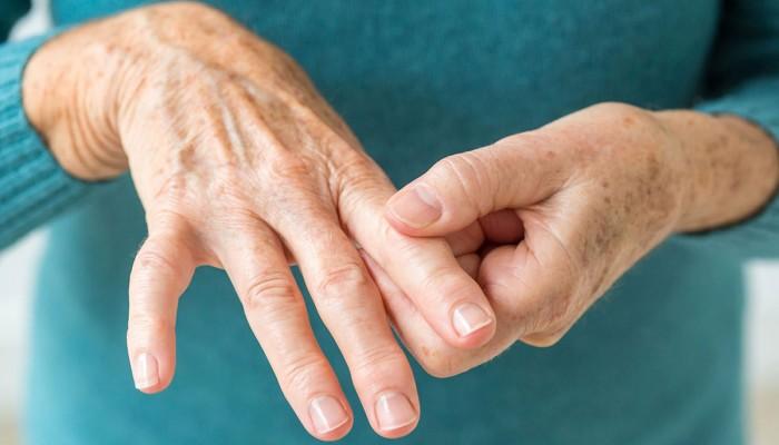 عادات صحية لمحاربة التهاب المفاصل الروماتويدي