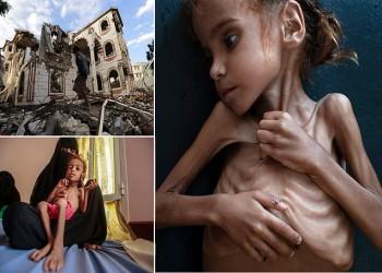 اليمن: متى تنتهي الحرب الملعونة؟