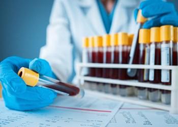 فحص دم يكشف سرطان الثدي قبل ظهوره بـ5 سنوات