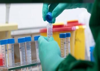 طبيبة كويتية تزعم اكتشاف علاج لكورونا وسط تشكيك واسع