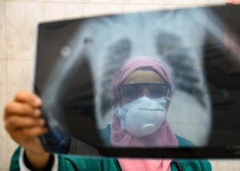 الأعلى للجامعات بمصر يبحث تحويل الصيادلة لأطباء بشريين