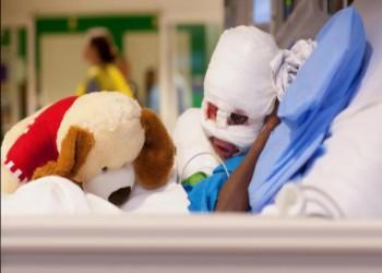 برلمان مصر يبحث طلبا بوقف إعلان مستشفى للحروق