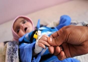 الأمم المتحدة: نصف أطفال اليمن يعانون سوء التغذية المزمن