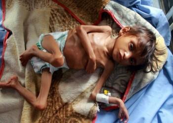 تحذير أممي من وضع مأساوي باليمن ينذر بوفاة آلاف الأطفال