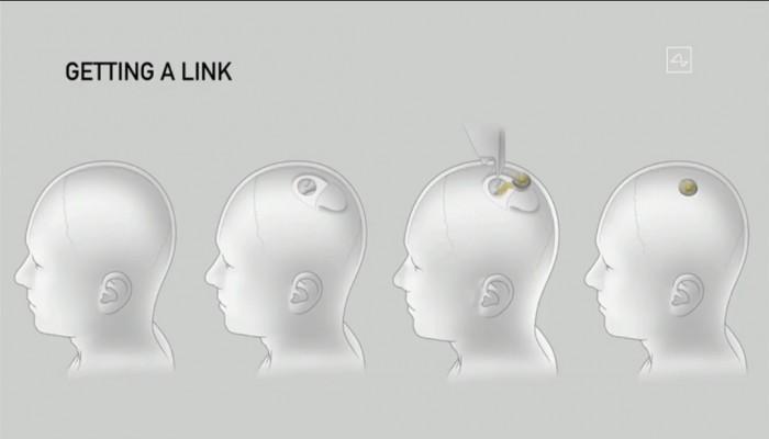 """خيال """"اللمبي 8 جيجا"""" يتحقق.. شريحة تمنح الذكاء بزرعها في البشر"""