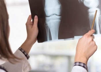 الكويت.. 35% من النساء فوق سن الـ50 يعانين من هشاشة العظام