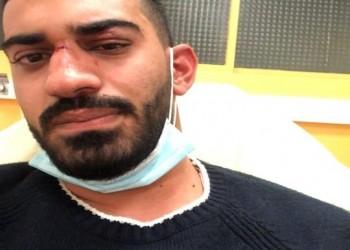 التحقيق في تعرض شاب أردني وشقيقته لاعتداء عنصري في فرنسا