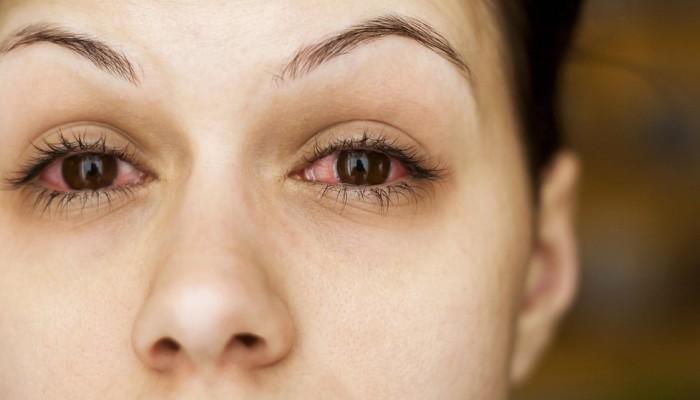 دراسة خطيرة: كورونا يهدد بفقدان البصر