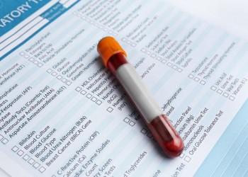 العلماء يكتشفون دلالات في الدم تشير لاقتراب الولادة