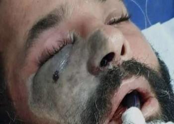 تخصيص مستشفيات لعلاج مصابي الفطر الأسود في مصر
