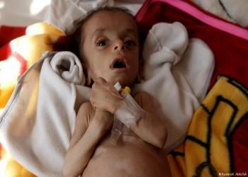 الحرب وانهيار الاقتصاد يهددان أطفال اليمن بالموت جوعا