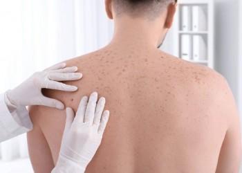 علماء يكشفون عن دواء جديد قد يكون بديلا عن الجراحة لسرطان الجلد